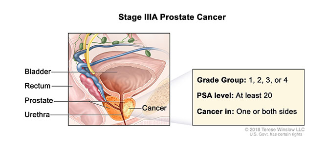 Prostate Cancer Stage IIIA