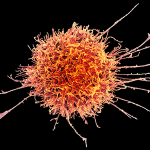 Colorized scanning electron micrograph of a natural killer cell from a human donor.