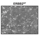 Stable expression of ERBB2 mutants in NIH 3T3 fibroblasts exhibited spontaneous foci formation in monolayers independent of cell plating density